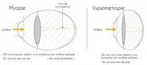 myopie-et-hypermetropie